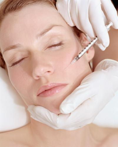 Rellenos de arrugas (Ácido Hialurónico)